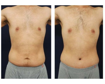 Abdominoplasty - Tummy Tuck before 396153