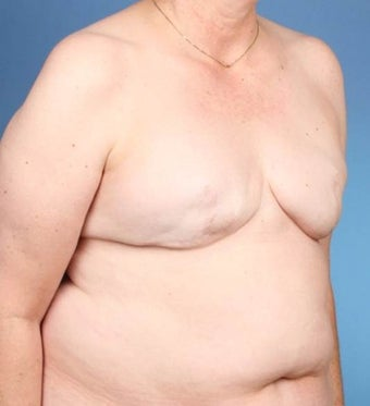 Breast Reconstruction 519678