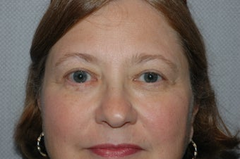 Upper Blepharoplasty (Eyelid Lift) after 118341