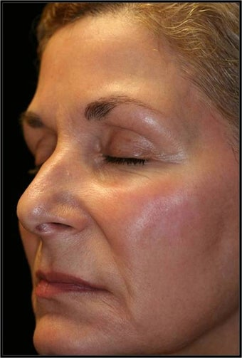 Fraxel - Melasma after 652345