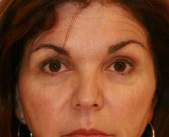 Lower eyelid blepharoplasty before 378926
