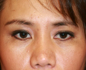 Upper eyelid blepharoplasty before 269086