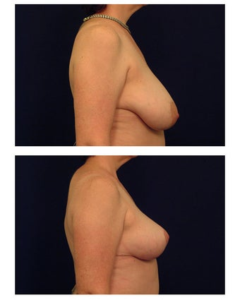 Breast Reduction before 286977