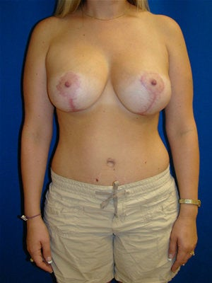 Breast Augmentation Surgery with Breast Lift after 123607