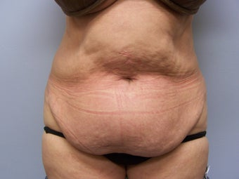 Tummy tuck before 590892