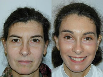 Full Facelift - Browlift, upper and  lower blepharoplasty, Lower Facelift before 139168
