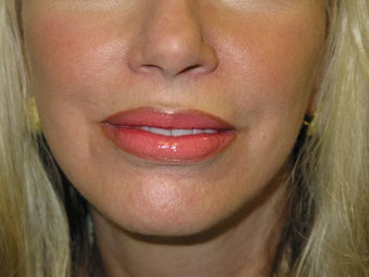 Lip Implant after 84411