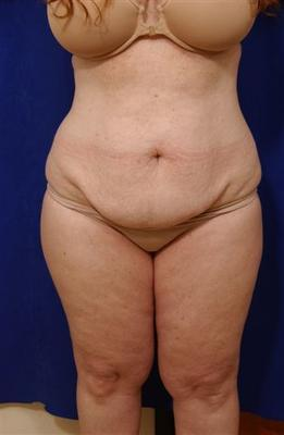 Abdominoplasty with liposculpture before 59762