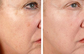 Active FX Fractional Laser Resurfacing before 254006
