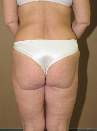 Ultrasonic liposuction thighs and fat transfer after 635414