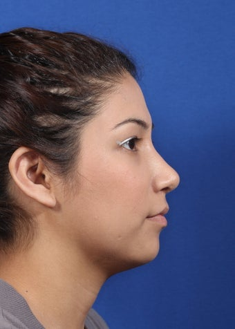 nasal airway surgery with cosmetic benefits after 478797