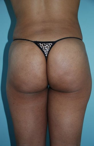Buttock Augmentation after 534393