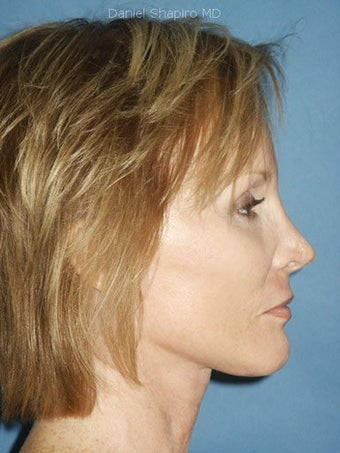 Facelift, Endoscopic Browlift, Upper and Lower Blepharoplasty, Perioral Dermabrasion after 248859