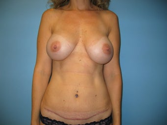 Mommy Makeover (breast augmentation and tummy tuck) after 285027