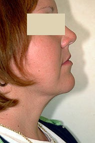 Neck Liposuction after 87335