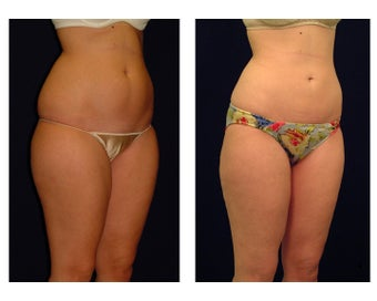 Liposuction before 286719