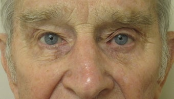 Upper Ptosis repair and Lower Blepharoplasty and Cheek Lift
