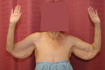 Brachioplasty or arm tuck in los angeles before 583676