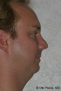 Chin Augmentation  before 565878
