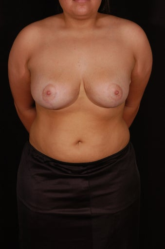 Breast Reduction after 130610