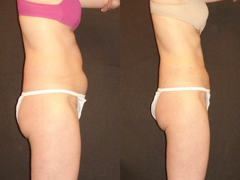 SmartLipo before 96269
