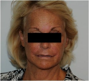 Evolence Injection in Glabella to Reduce Static Wrinkles after 123624