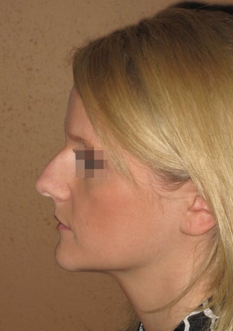 Rhinoplasrty ealry result 2 weeks after before 272885