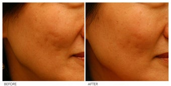 Acne Scarring Correction before 136806
