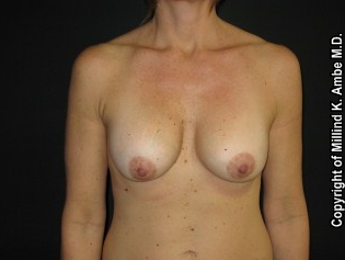 Breast Implant Revision before 542393
