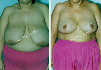 Breast Reduction before 243750