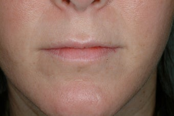 Lip enhancement before 95917