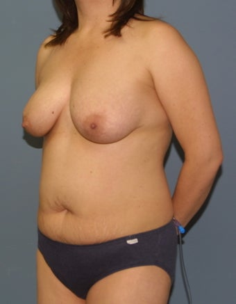 Mommy Makeover Breast lift and tummy tuck 528659