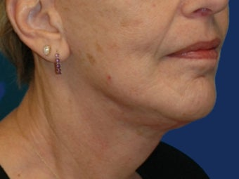 Lower Facelift and Necklift with Platysmaplasty after 243449