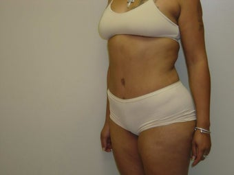 Tummy Tuck after 504651