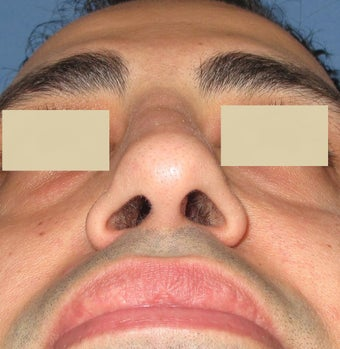 Rhinoplasty, Septoplasty after 127178