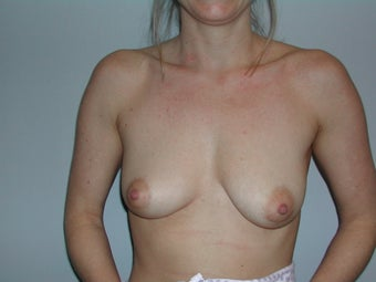 Breast augmentation before 237169