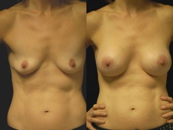 Breast augmentation, gel implants before 462159