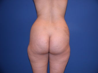 Liposuction on thighs, hips, buttocks before 197258