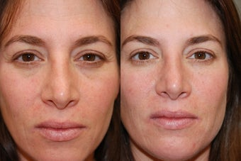 Non-Surgical Facial Rejuvenation with Silikon-1000 and Botox before 146221