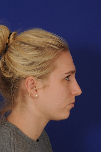 rhinoplasty after 274533