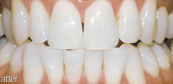 Teeth whitening genetic after 234636