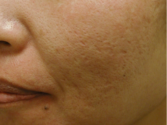 Acne Scars 200602