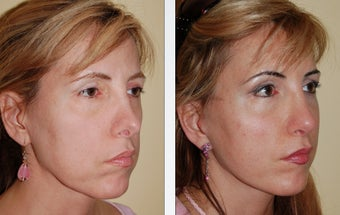 Revision Rhinoplasty after 346254