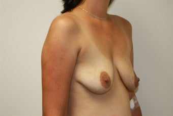 Breast Lift before 221110