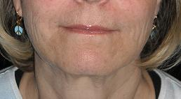 """Liquid facelift"" with filler after 327865"