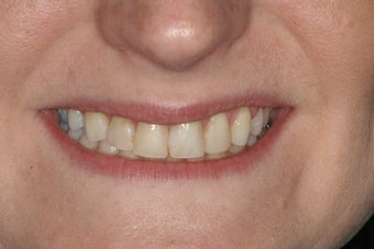 Porcelain Veneers before 213081