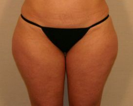"Liposuction Lateral Thighs ""saddlebags"" before 380048"