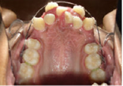 Braces and Extraction before 349028