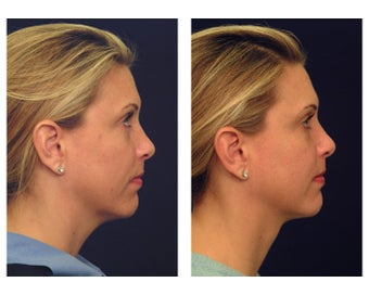 Neck Lift & Lower Facial Rejuvenation before 376152