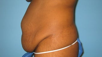 tummy tuck before 284062